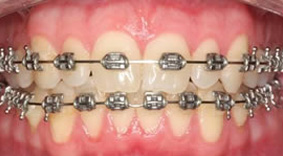 About Fixed Appliances Nhs Treatments The Orthodontic