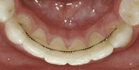 Retainers: Removable and Fixed - The Orthodontic Clinic
